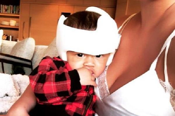 Dont feel bad: Chrissy Teigen explains why her son Miles has to wear a helmet