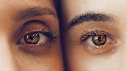 Dark circles that wont go away? Heres why more sleep isnt the answer