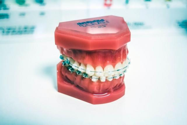 5 ways to prepare your child for wearing braces