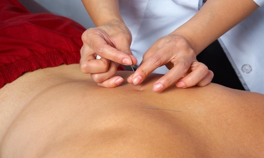 Zen Acupuncture - Dublin