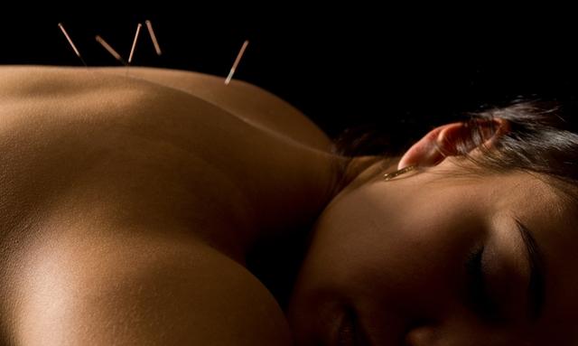Zen Acupuncture - Wicklow